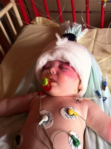 Bébé atteint du syndrome de Sturge-Weber