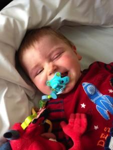 Syndrome de Sturge-Weber chez les nouveaux nés