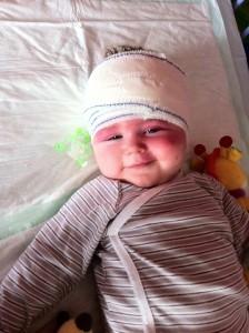 Le syndrome de Sturge-Weber chez les enfants