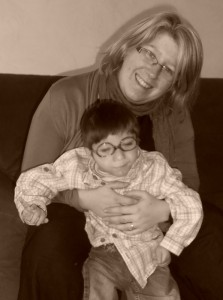 Petit garçon atteint d'épilepsie et de microcéphalie