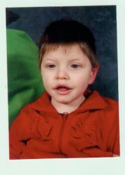 Jeune garçon atteint d'une microcéphalie