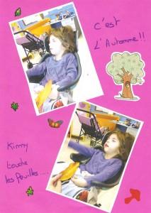 Kimy et le Micro Warburg Syndrome