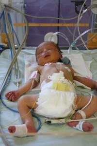 Néo au service néonatal