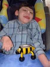 Anthony est atteint de microcéphalie