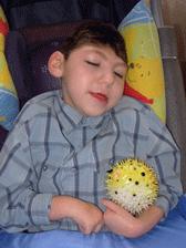 Enfant aillant une microcéphalie