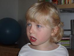 Petite fille ayant le syndrome de Rett