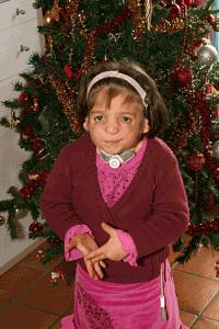 Syndrome de Franceschetti et Noël