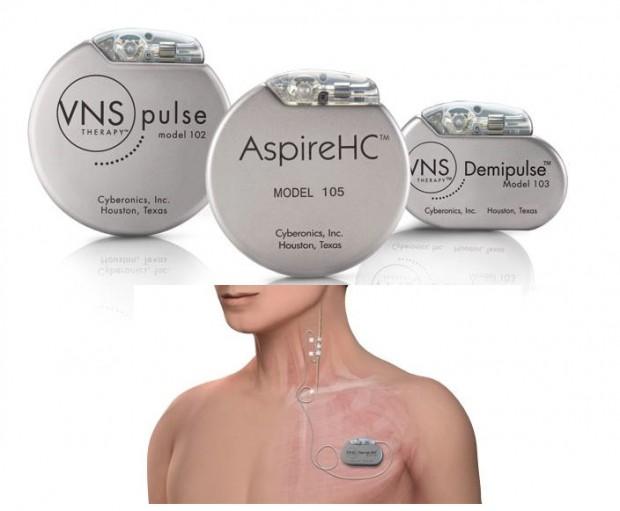 épilepsie : implants