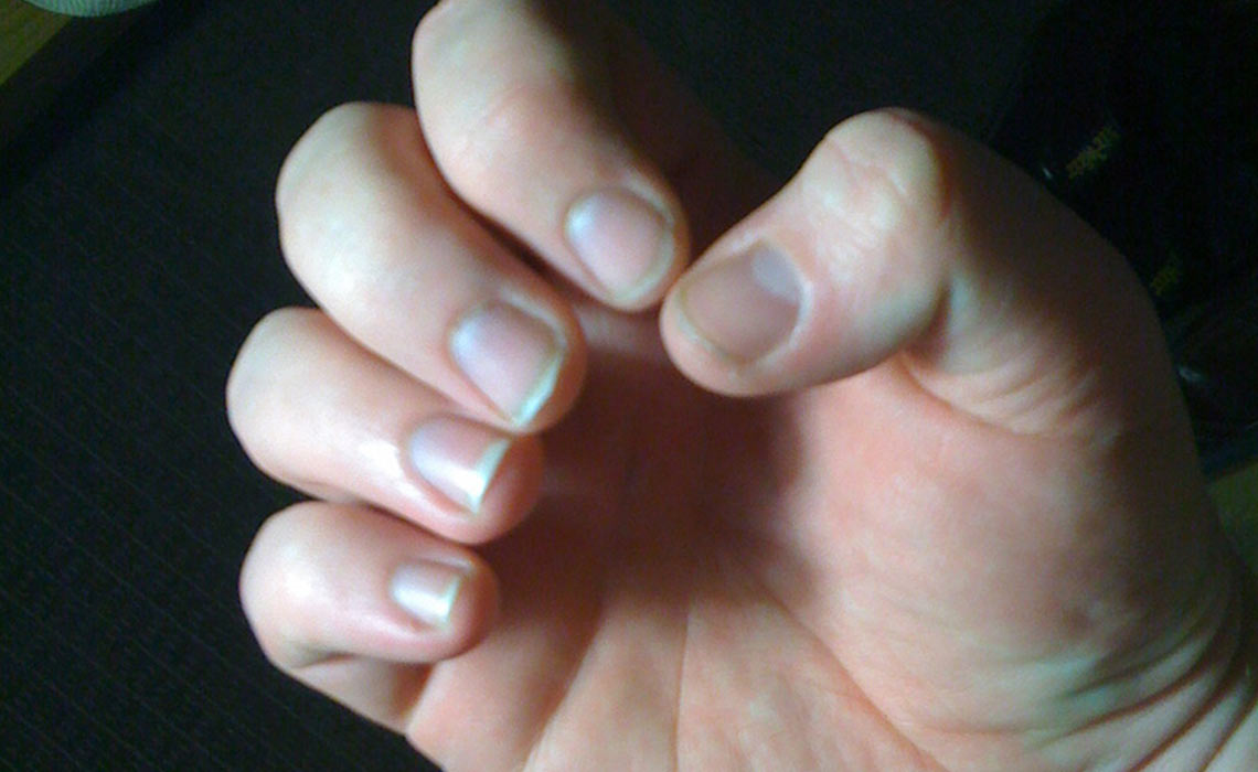 cortar las uñas de un niño autista