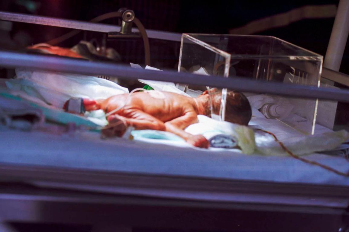 La couveuse, l'oxygénation, et le bébé prématuré